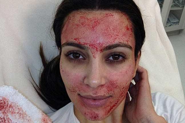 kim kardashian pengamal rawatan kecantikan vampire facelift