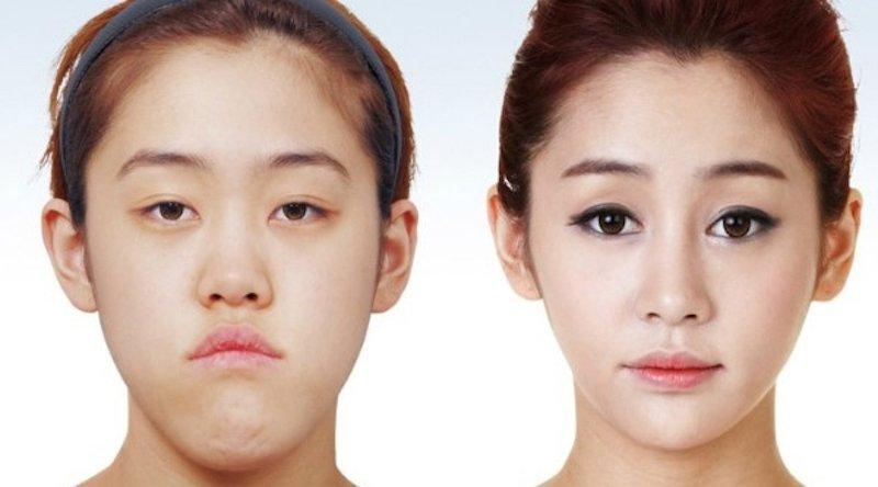 korea selatan negara paling banyak melakukan pembedahan plastik