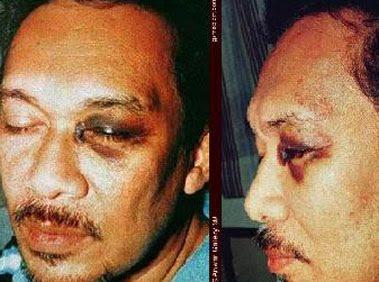 kronologi karier politik dan sabitan hukuman anwar ibrahim 6