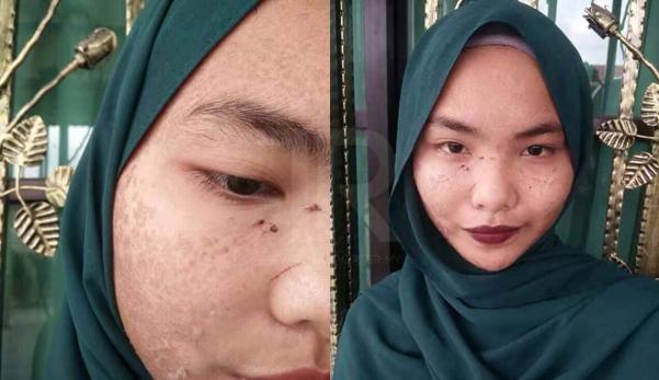 kulit bersisik kerana produk putih kulit krim kosmetik