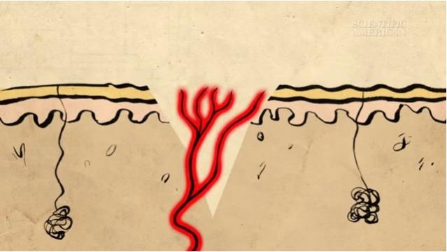 lapisan kulit luka