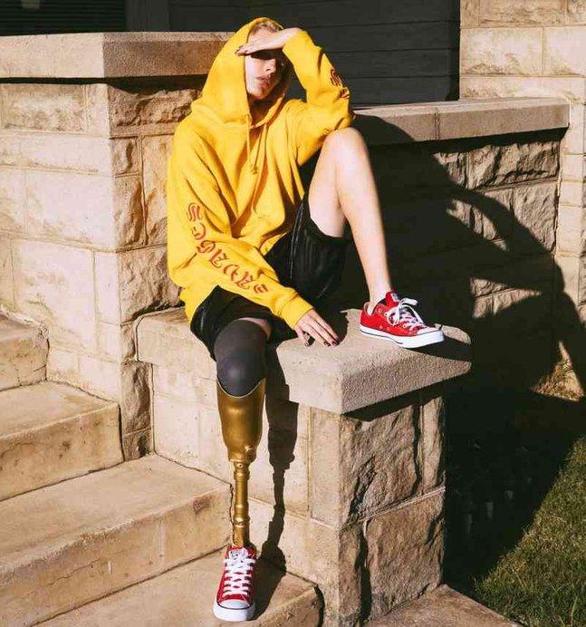 lauren wasser model kehilangan kedua dua belah kaki akibat pemakaian tampon tuala wanita 7