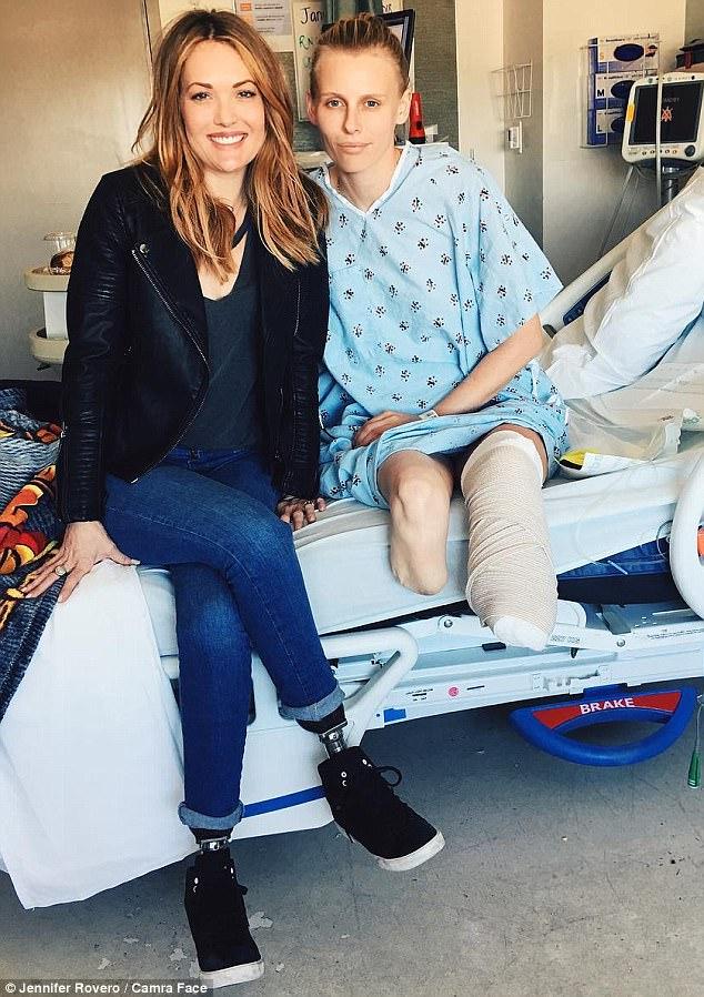 lauren wasser model kehilangan kedua dua belah kaki akibat pemakaian tampon tuala wanita