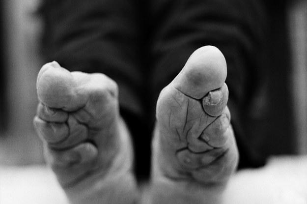 membentuk kaki persepsi kecantikan yang pelik dari seluruh dunia 2