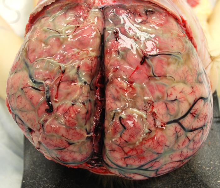 meningtis