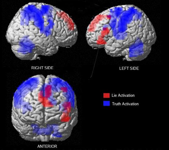 mesin imbasan fmri menunjukkan aktiviti otak depan apabila menipu