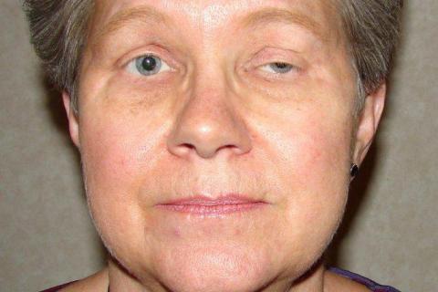 myasthenia gravis 5 penyakit yang mencegah penyakit lain