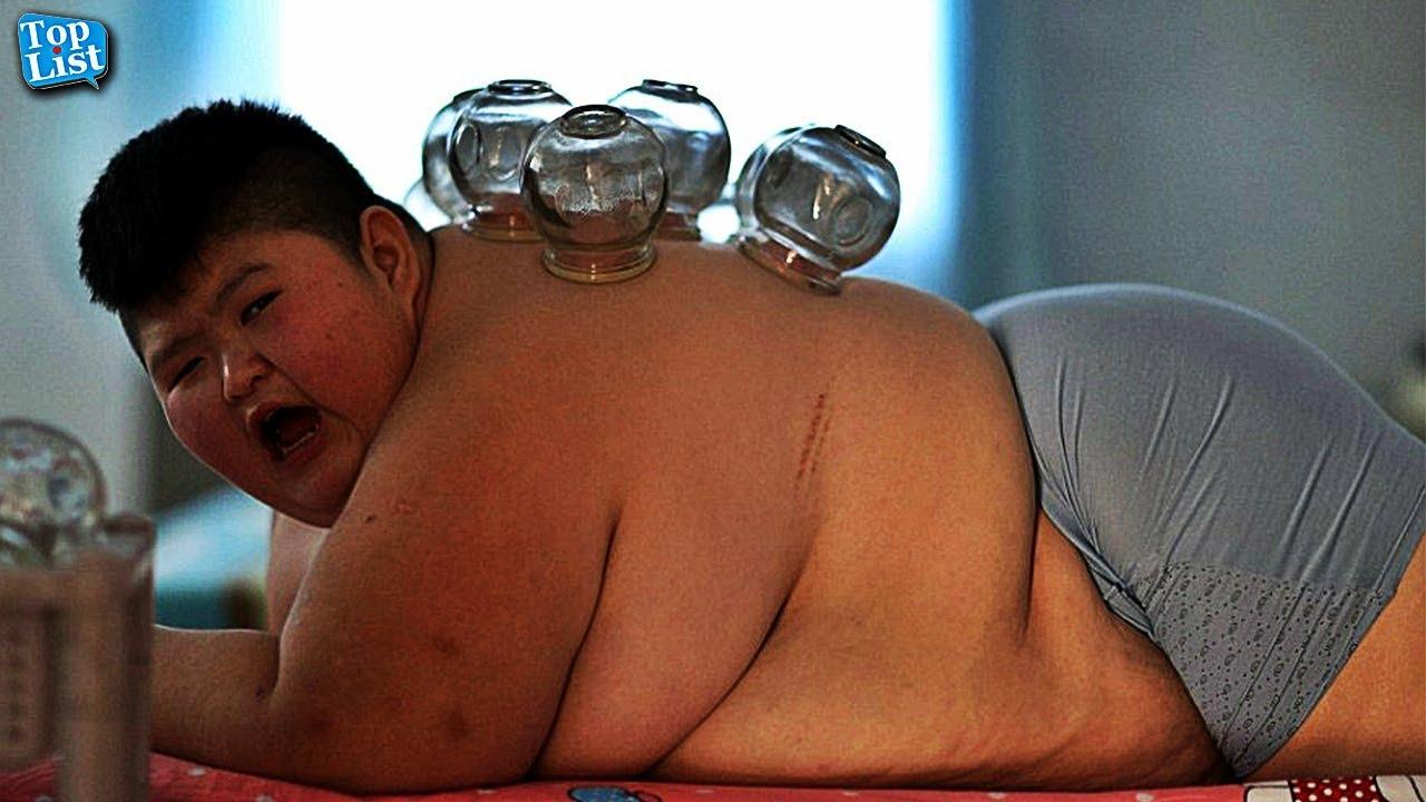obesiti boleh sebabkan rendah iq
