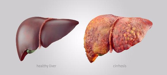 organ hati sihat dan dijangkiti hepatits b