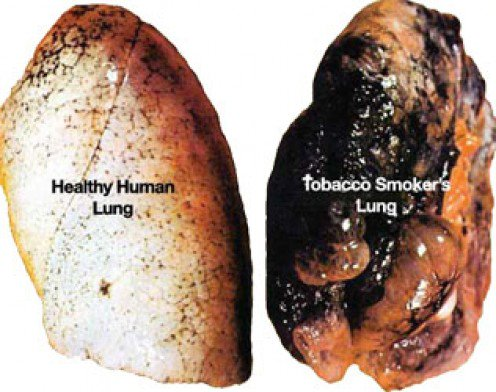 paru paru sihat dan paru paru perokok