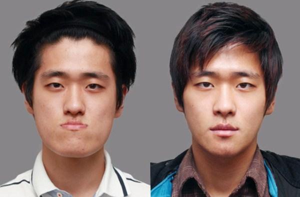 pembedahan plastik korea selatan lelaki