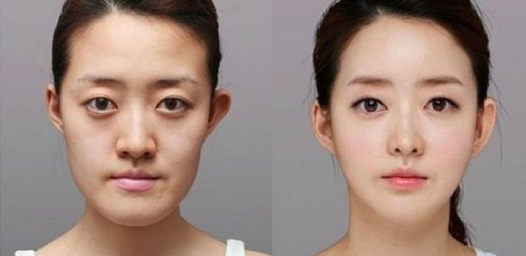 pembedahan plastik korea selatan