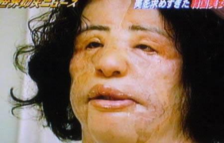 pembedahan plastik paling gagal yang mengerikan dan bertukar menjadi mimpi buruk 1