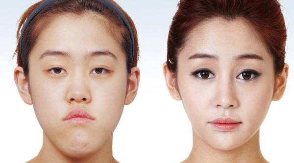 pembedahan plastik sebelum dan selepas