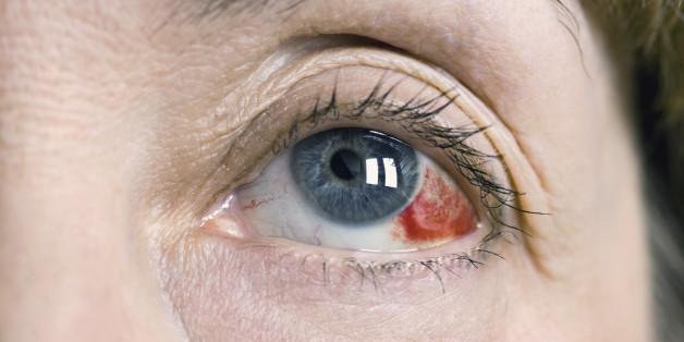 pendarahan mata