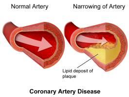 penyakit jantung koronari