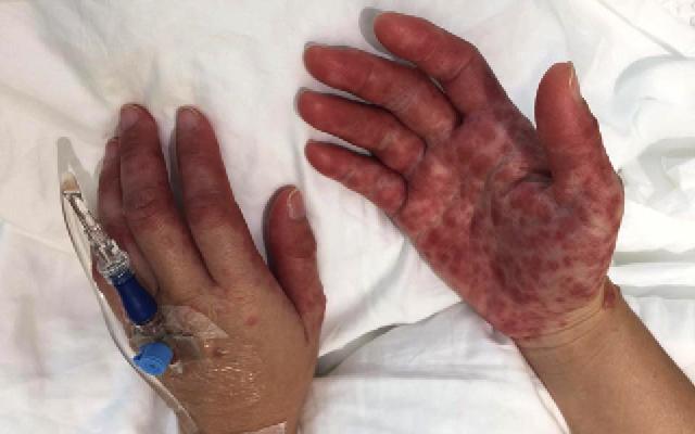 penyakit tangan kaki dan mulut juga boleh menjangkiti orang dewasa