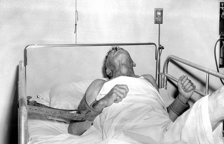 pesakit pada tahap terakhir rabies