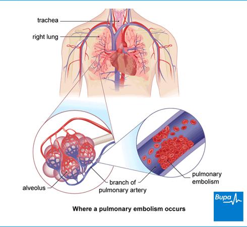 pulmonary embolism pembunuh ibu melayu 3