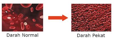 pulmonary embolism pembunuh ibu melayu