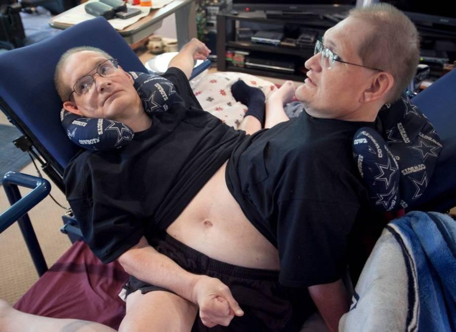 ronnie dan donnie galyon kembar siam paling lama hidup dalam sejarah