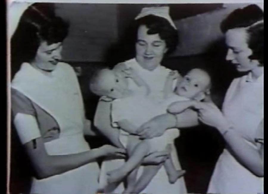 ronnie dan donnie galyon selepas dilahirkan