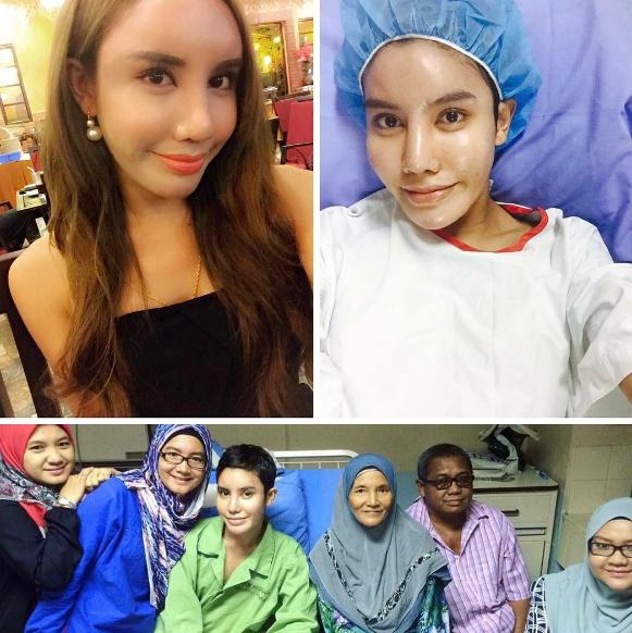 safiey ilias setahun selepas buang dua biji bebola gel 2