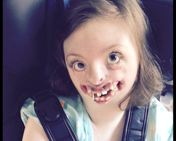 sindrom rett kecacatan perkembangan otak yang kerap berlaku pada bayi perempuan 2