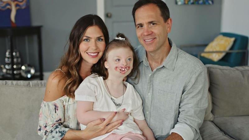 sindrom rett kecacatan perkembangan otak yang kerap berlaku pada bayi perempuan 4