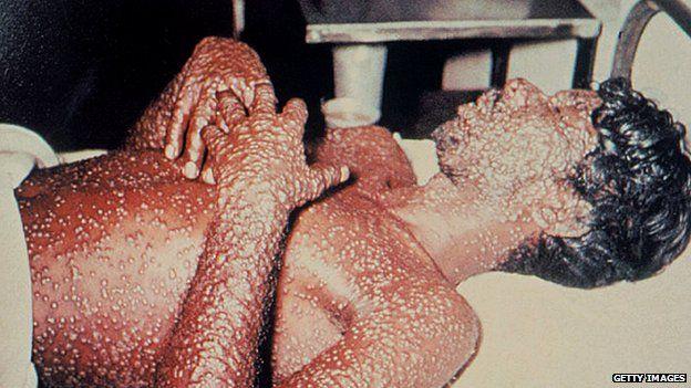 smallpox 334