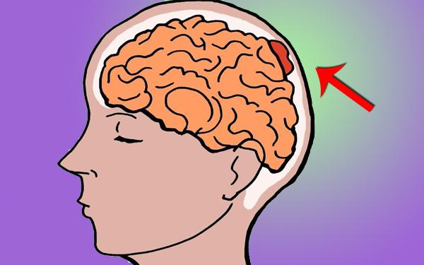 tanda ketumbuhan otak