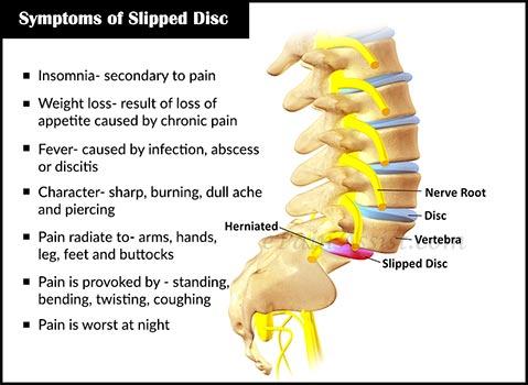 tanda tanda dan simptom slipped disc