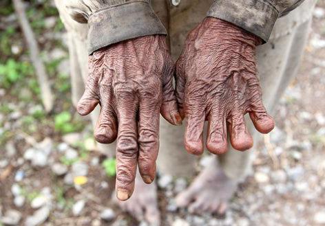 tradisi memotong jari oleh puak di new guinea 2