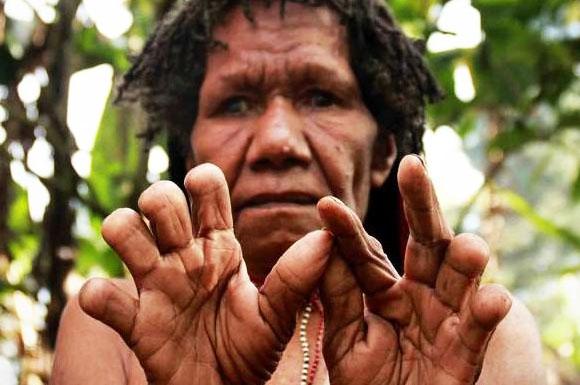 tradisi memotong jari oleh puak di new guinea