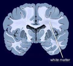 white matter dalam otak