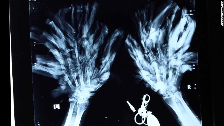 xray epidermodysplasia verruciformis