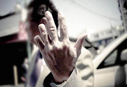 yubitsume amalan potong jari