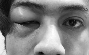 Apa Terjadi Pada Mata Akim Ahmad?