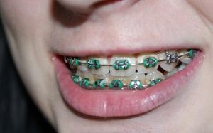 Bahaya Pendakap Gigi Tiruan